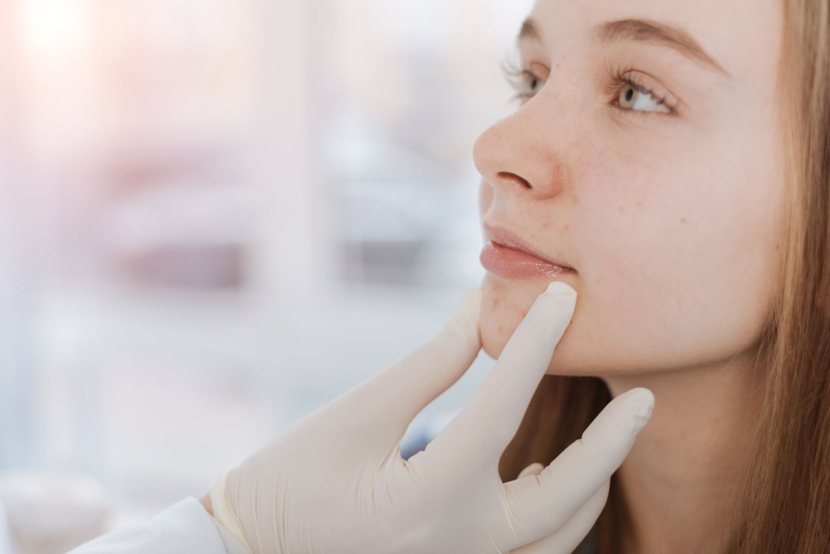 Adolescent Skin Disorders